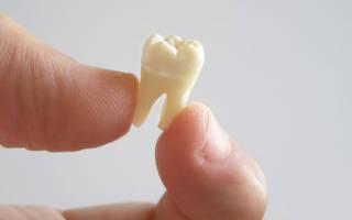 Сонник выпал черный зуб без крови